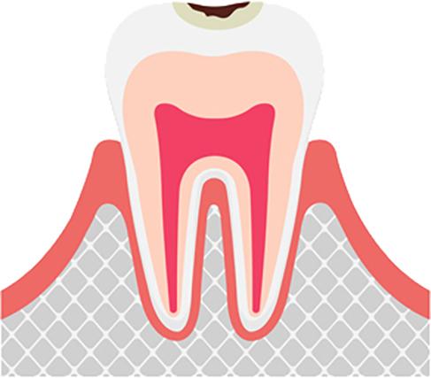エナメル質の虫歯 虫歯の進行