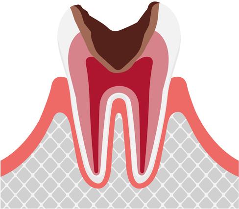 歯髄の虫歯