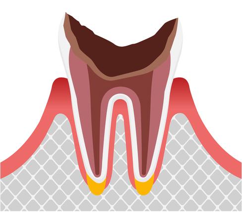 歯周組織の虫歯