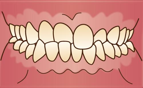 交叉咬合 クロスバイト 臼歯部交叉咬合 前歯部交叉咬合