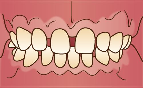 空隙歯列 すきっ歯
