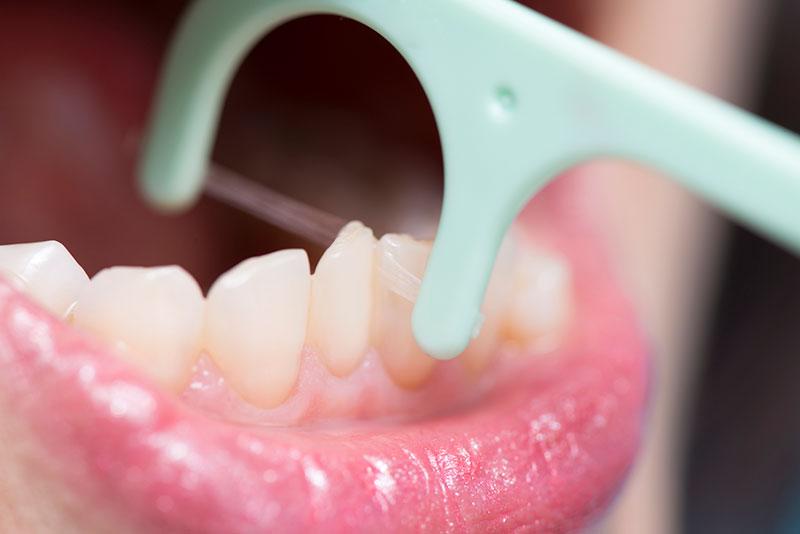歯のクリーニング メンテナンス セルフケア